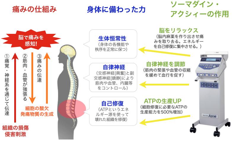 痛みの仕組みとソーマダインの作用